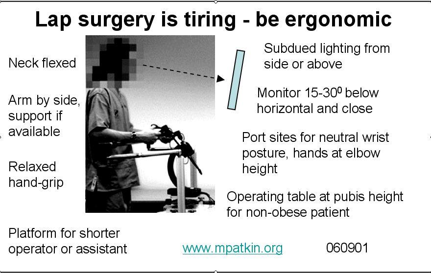 Pocketcard For Lap Surgery Ergonomics